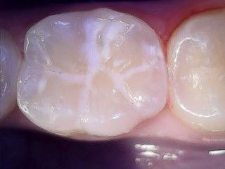 зуб без кариеса