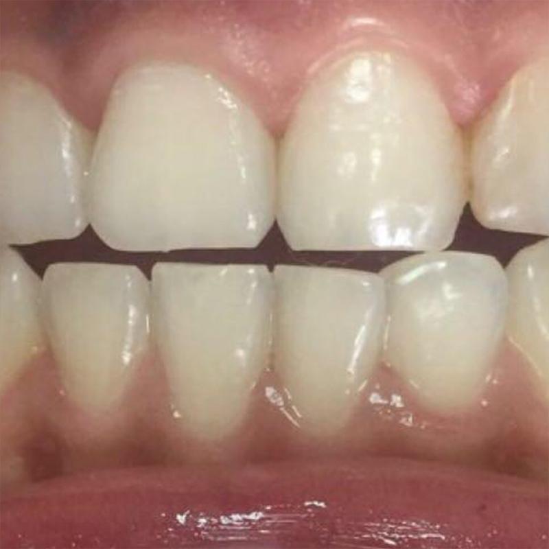 зубы в близи