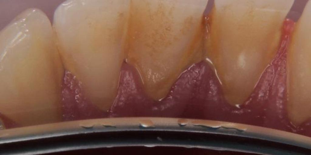 зубы до профчистки