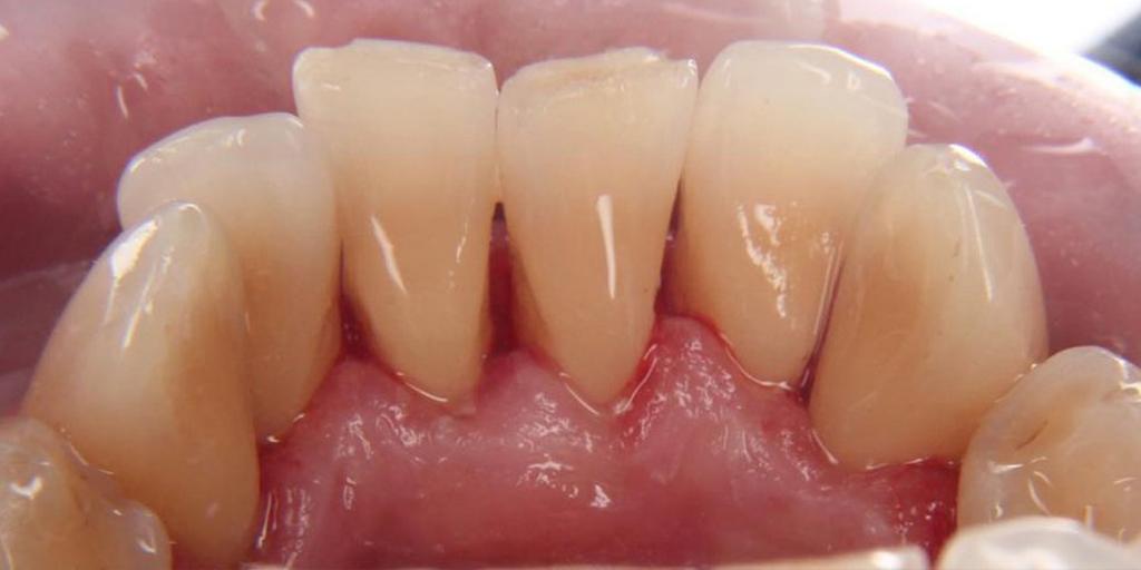 зубы после профчистки