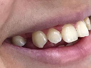 Подготовка соседних двух зубов (до)