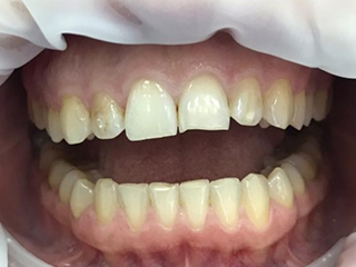 Реставрация передних зубов (до)