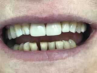 Реставрация зубов (после)