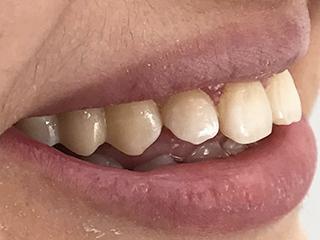 Подготовка соседних двух зубов (после)