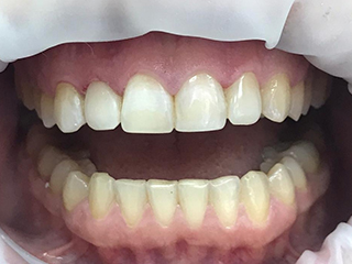 Реставрация передних зубов (после)